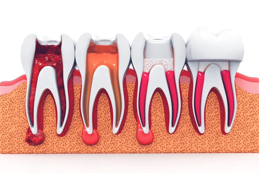 root canal 3d illustration